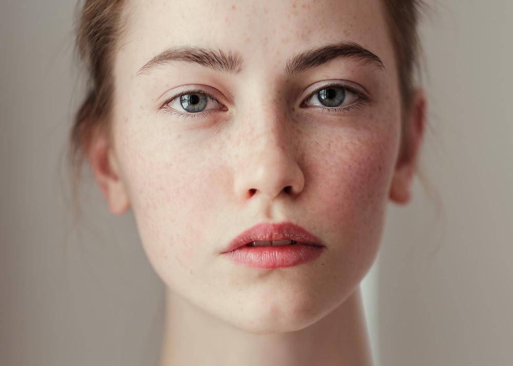 Botox-Treat-help-acne-Metro-Bangkok-Clinic