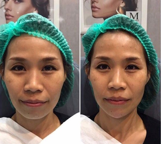 Metro-Bangkok-Clinic-Chin-Augmentation-Juvederm-Allergan-Before-After