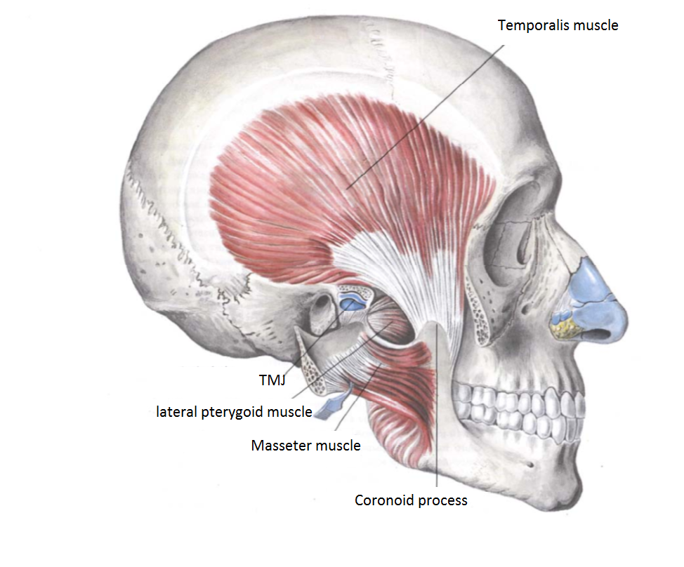 What Does Masseter Reduction Botox Involve?