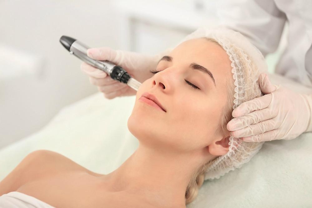 Microneedling-Treatment
