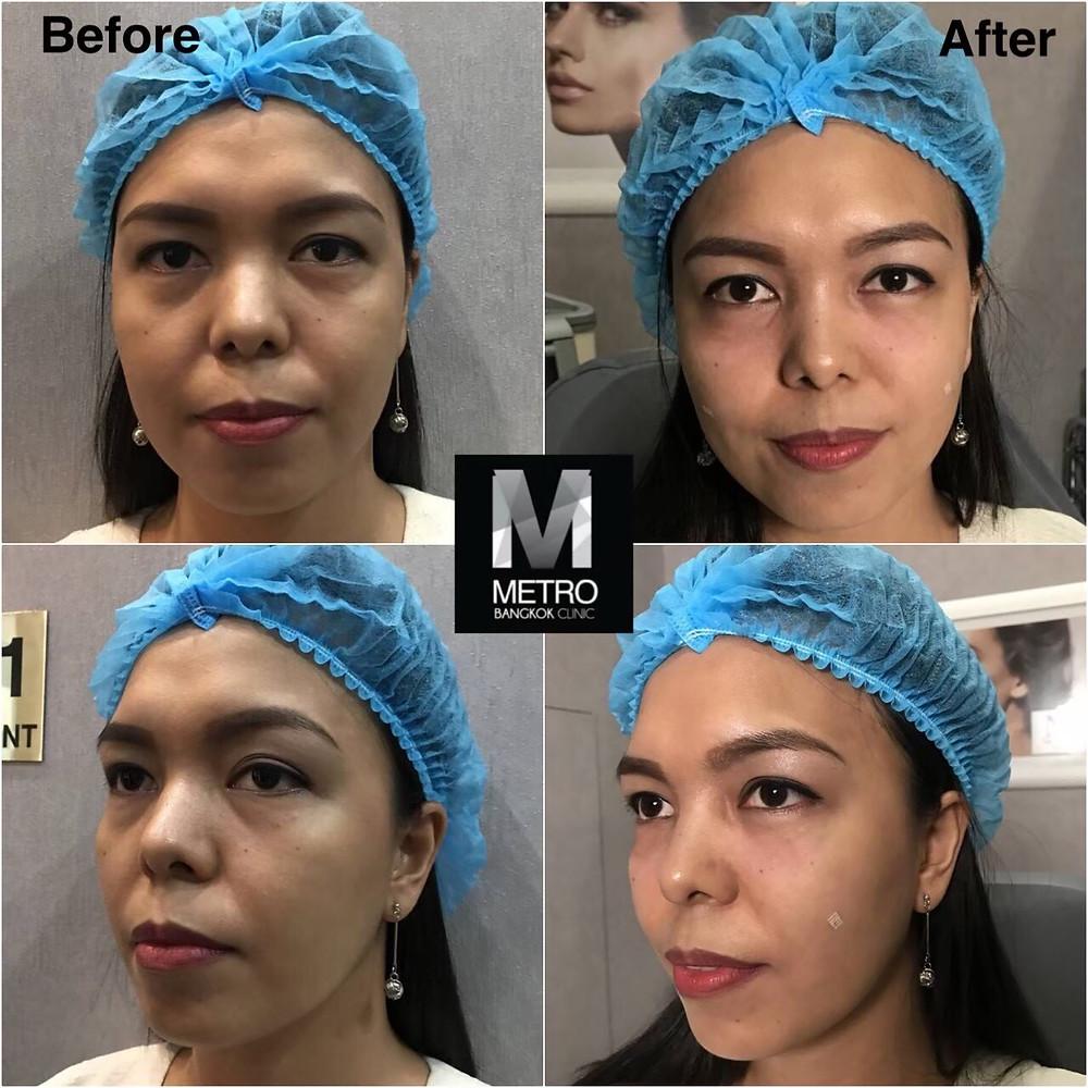Juvederm-Undereye-Hollows-Treatment-Metro-Bangkok-Clinic