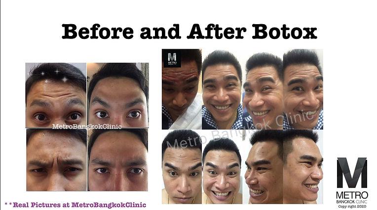 โบท๊อก-หน้าผากย้น-ตีนกา-ขมวดคิ้ว-เมโทร-บางกอก-คลินิก-กรุงเทพ-Botox Before After.jpg