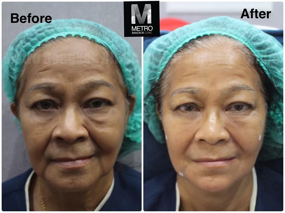 Juvederm-Mid Face-Treatment-Metro-Bangkok-Clinic
