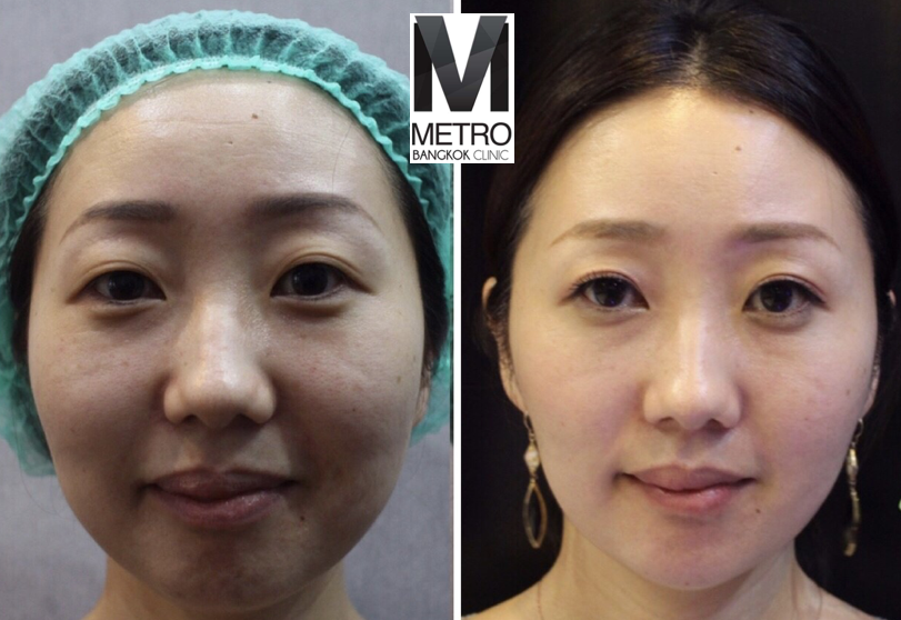 Metro-Bangkok-Clinic-Thermage-Before-After