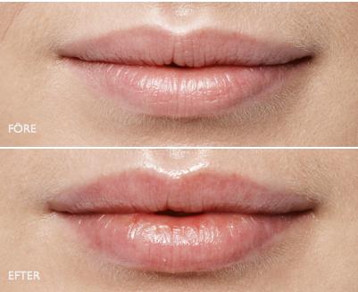 Lip Fillers.png