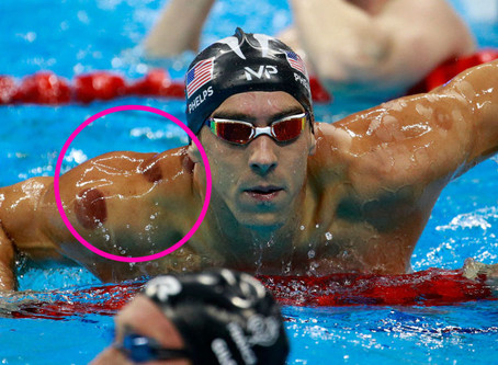 Michael Phelps, Crop Circles and Cupping