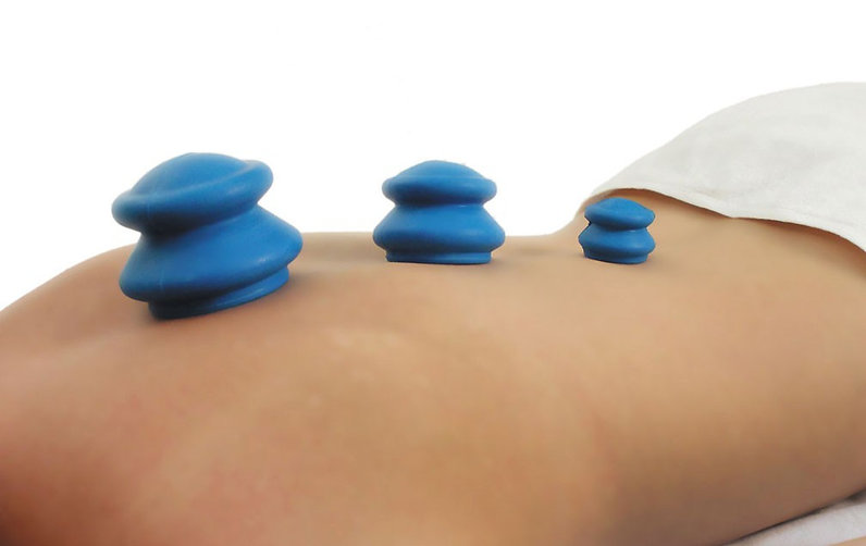 cupping picture.jpeg