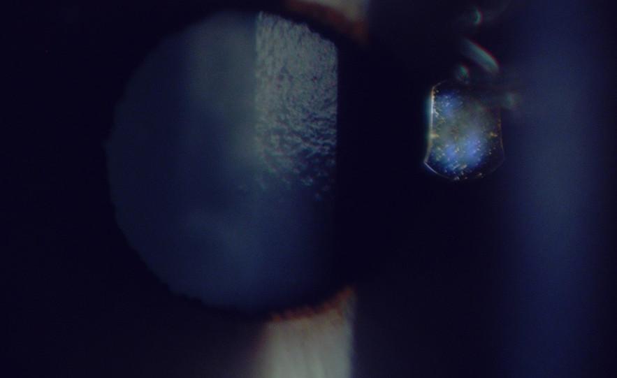 Lens capsule.jpg