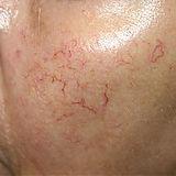 spider veins 2.jpg