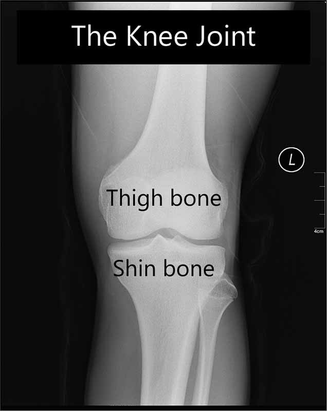 The knee joint is formed by the femur (thigh bone) and tibia (shin bone)