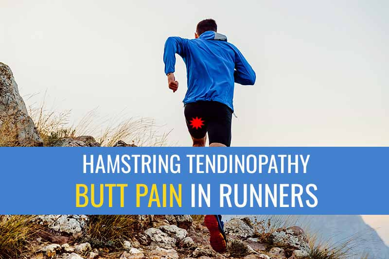 Proximal hamstring tendinopathy is one of the most common causes for buttock pain in runners.