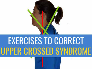 Exercises to correct Upper Crossed Syndrome