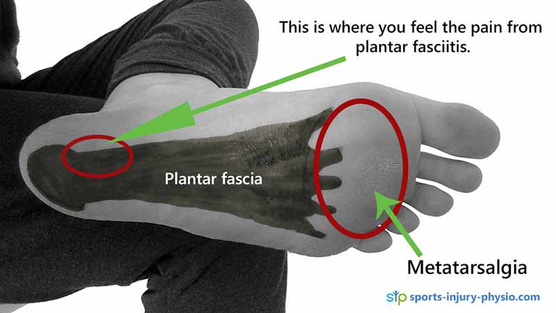 Pain under the foot can be Plantar fasciitis or metatarsalgia.