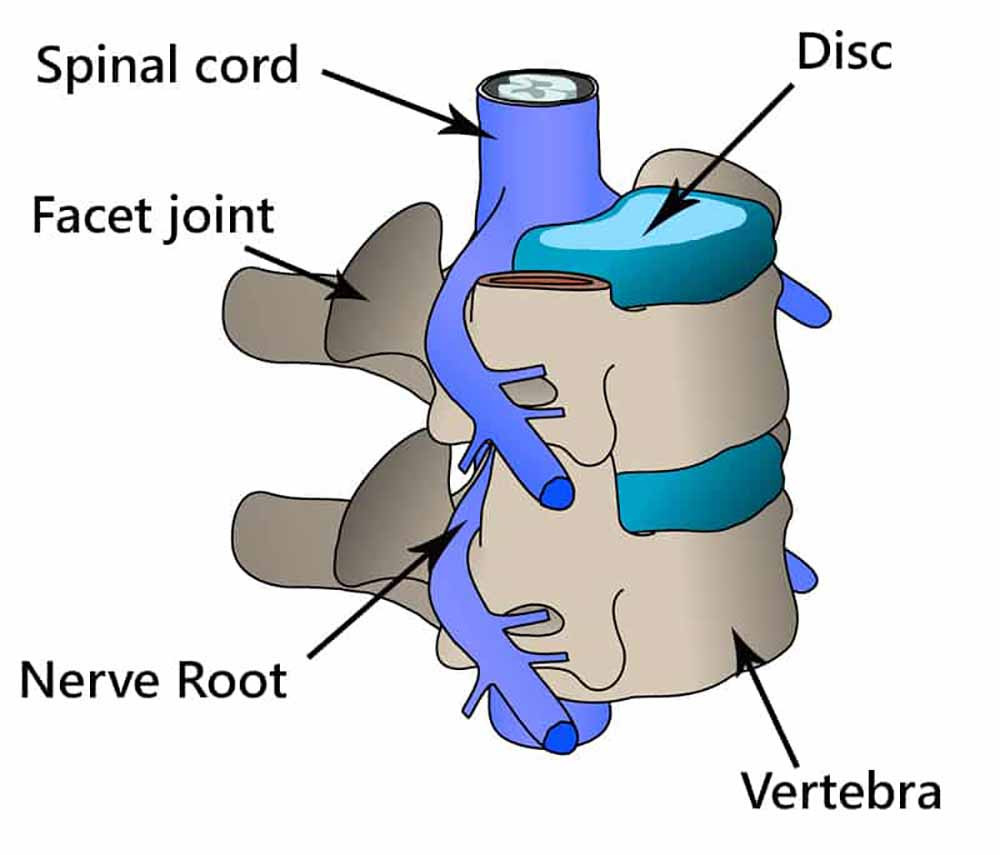 Your spine is formed by vertebrae stacked on top of each other with discs between them.