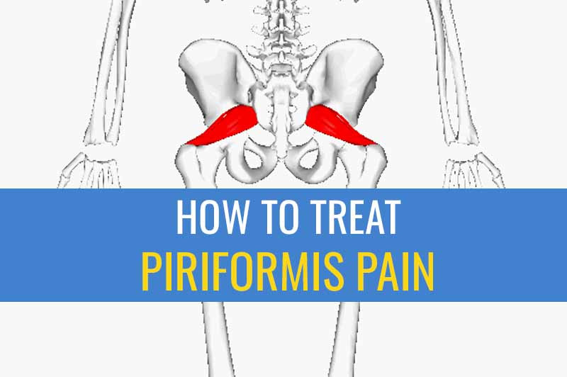 5 Tips for treating Piriformis pain