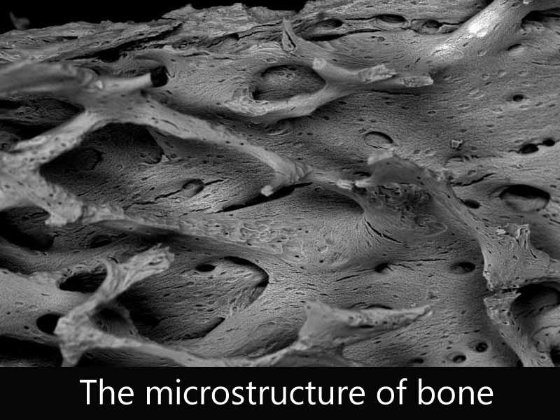 The micro-structure of bone.