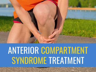 Treatment for Anterior Exertional Lower Leg Pain (compartment syndrome)