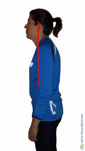 Poor neck posture in standing.