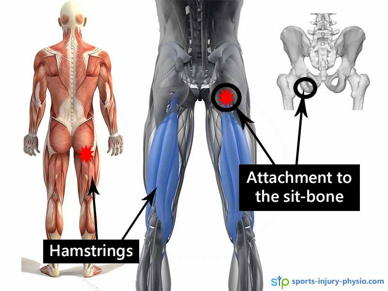 You feel the pain from proximal hamstring tendinopathy where the hamstring tendon attaches into the sit-bone on your pelvis.