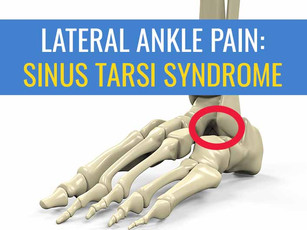 Sinus Tarsi Syndrome as cause of lateral ankle pain