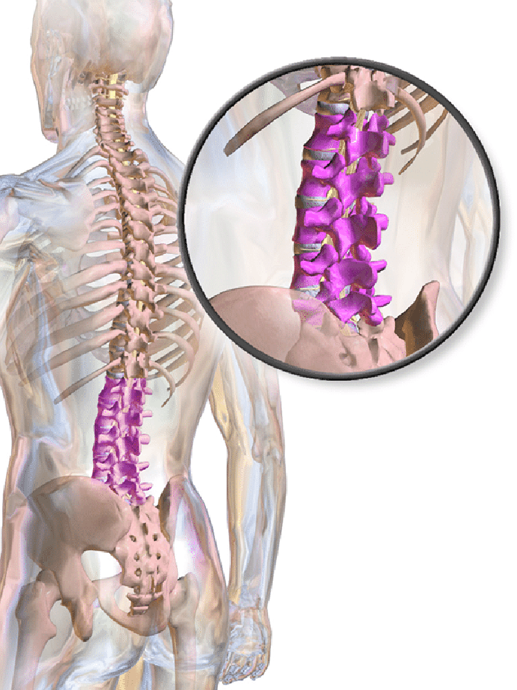 The lumbar vertebrae are the very lowest 5 bones that you have in your back.