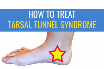 内侧踝关节疼痛:ttsal隧道综合征