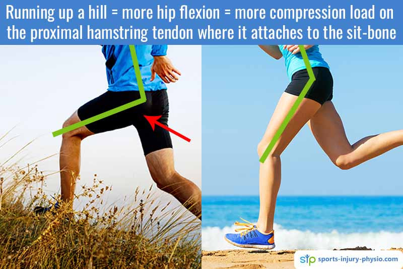 Picture showing the hip angles of two runners. The one who is running up a hill runs with more hip flexion and this puts more compression force on the proximal hamstring tendon that the runner who is running on flat ground.