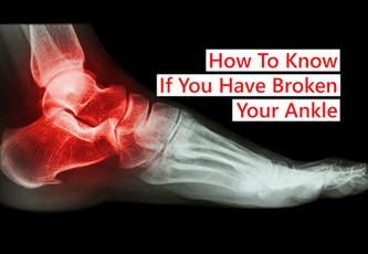 如何知道你是否摔断了脚踝