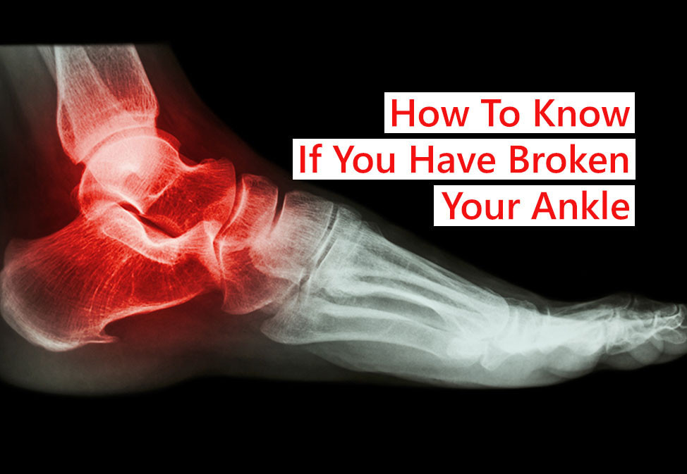 How to know if you've broken your ankle? You can use the Ottawa rules to figure it out.