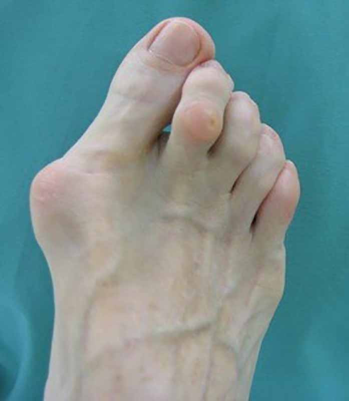 Hallux Valgus or Bunion deformaty of the big toe can be caused by high heels.