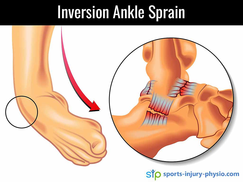 An inversion ankle sprain is when you roll your ankle inwards. It usually injures the muscles and ligaments on the outside of your ankle.