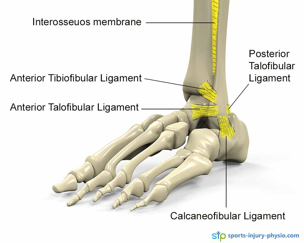 The ligaments on the outside of the ankle are the most common ones to injure when you sprain your ankle.