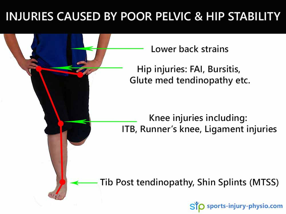 Injuries caused by poor pelvic and hip stability.