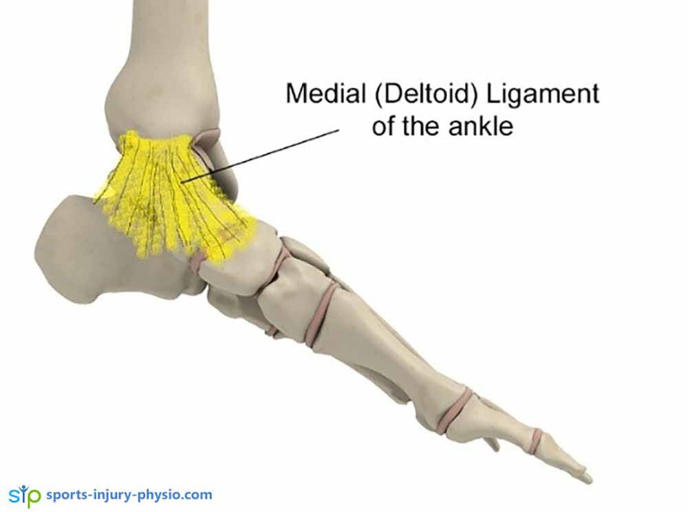 It's not very common to sprain the medial ankle ligament or deltoid ligament. Ankle sprains that involve this ligament is usually more serious.