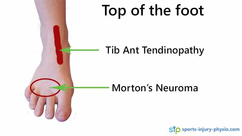 Pain over the top of the foot can be Tibialis anterior tendinopathy or Morton's neuroma