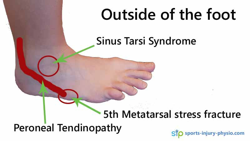 Pain on the outside of the foot can be Peroneal tendinopathy, Sinus tarsi syndrom or a stress fracture.