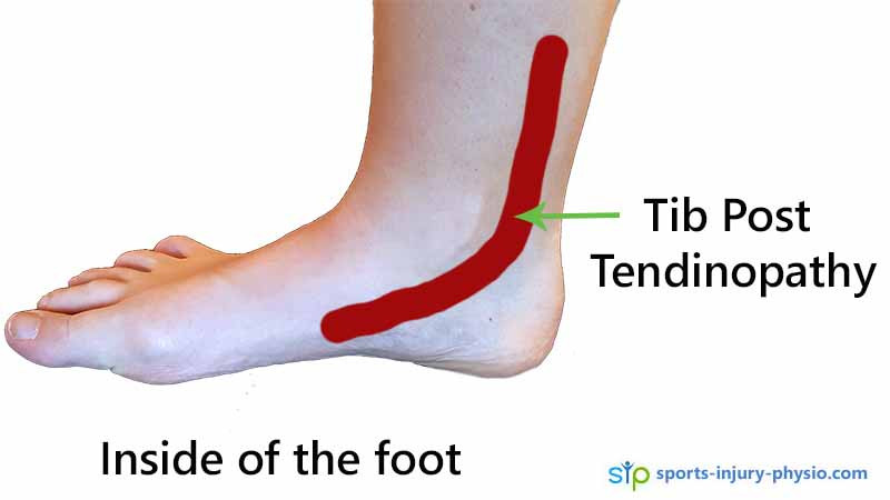 Pain on the inside of the foot can be tibialis posterior tendinopathy.