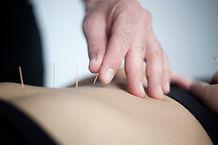 Acupuncteur Spinal Mouvement
