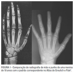 radiografia mao e punho para idade ossea