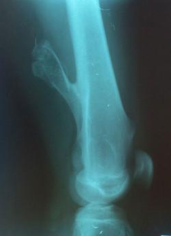 Osteocondroma_do_Fêmur