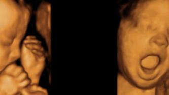 Diferenças entre Ultrassom 3D, 4D e Morfológica - Preços