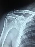 Healthy Shoulder Xray.jpg