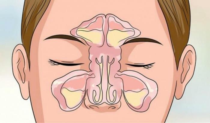 Cómo hacerte un masaje para aliviar la nariz congestionada