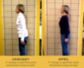 OsteoStrong Balance Posture