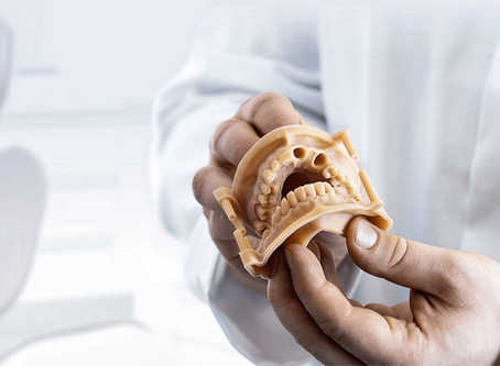 Printare 3D de precizie pentru industria dentara