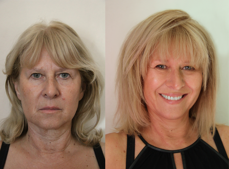 Before and After - Mature hair and make-up