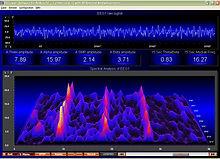 EEG2_2_200_2.jpg