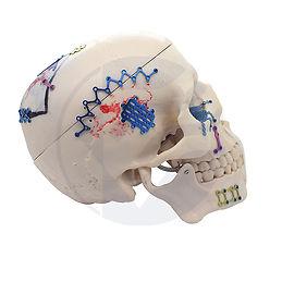 Titanium-Neuro-Fixation-Craniomaxilofaci