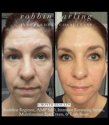 Robbin Carling - Independent Consultant