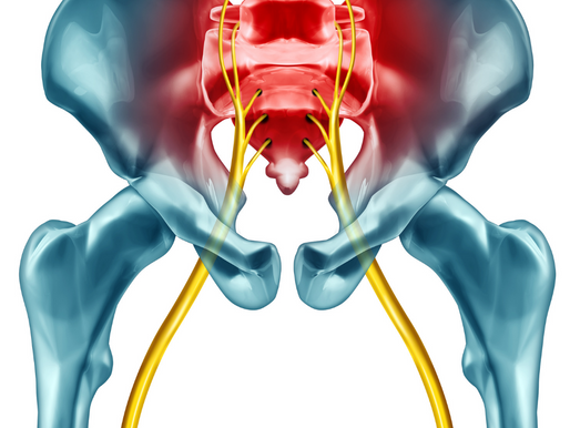 10 Things to Know About Sciatica
